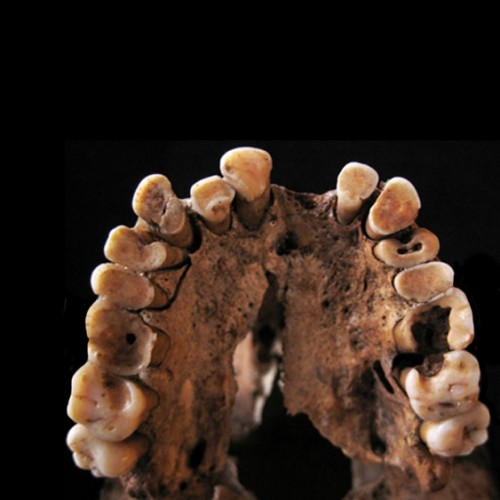 Ancient hunter-gatherers' diet gave them toothache